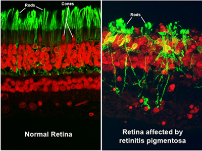 Retinitis Pigmentosa progression may be slowed by cannabis